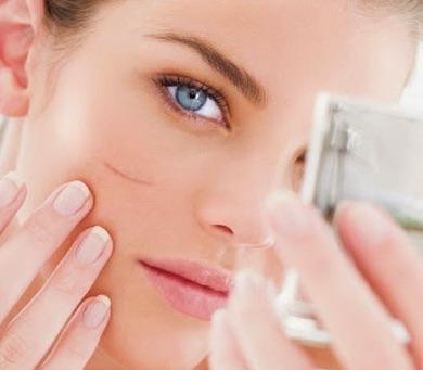 Các phương pháp trị sẹo vết thương hiệu quả